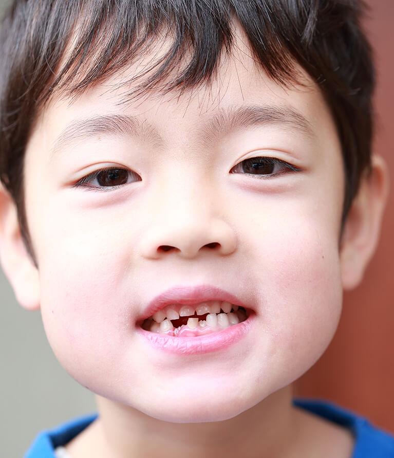 歯並びの悪い場合もお気軽にご相談ください