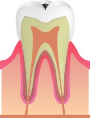 C1:歯の表面の虫歯