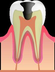 C3:歯の神経にまで達した虫歯
