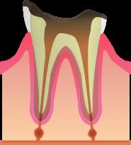 C4:歯の根元だけが残っている虫歯