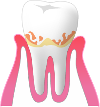 P1:歯肉炎