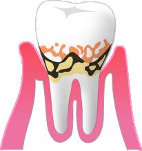 P2:軽度歯周炎