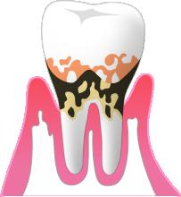P3:中等度歯周炎