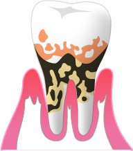 P4:重度歯周炎
